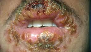herpes simplex 3